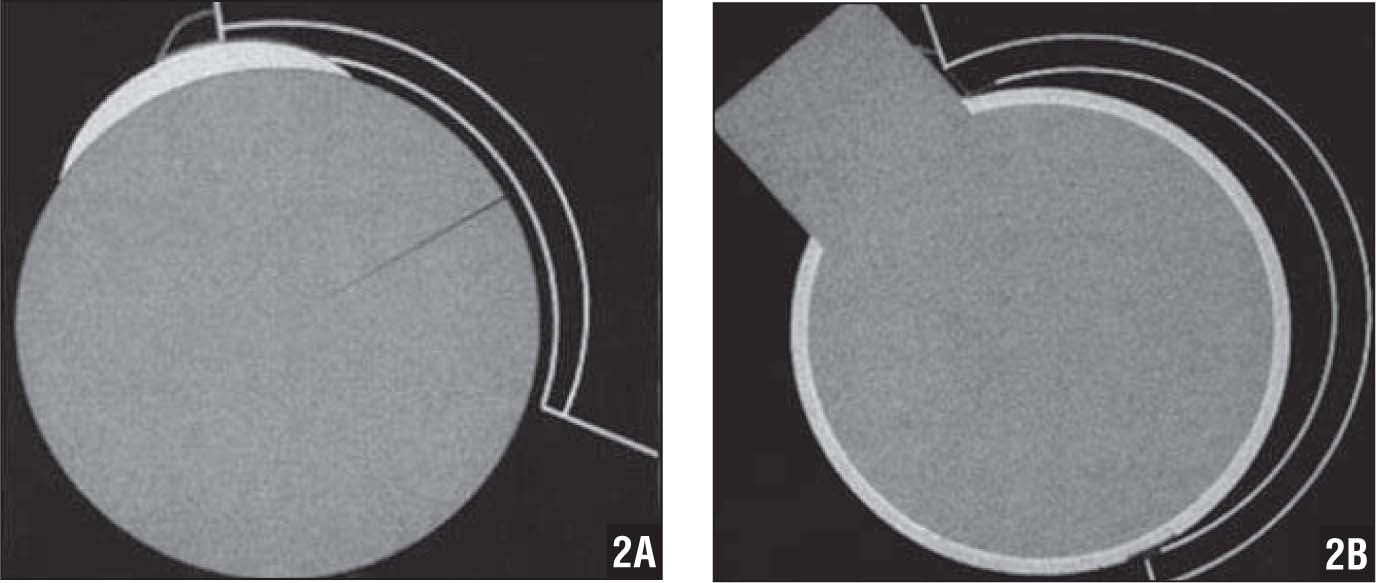 Schematics Demonstrating Cam Impingement (A) and Pincer Impingement (B) as Well as Their Associated Labral Tears and Cartilage Damage. The Counter-Coup Lesion Is Visible as Well (right). (Reprinted with Permission from Ganz R, Parvizi J, Beck M, Leunig M, Nötzli H, Siebenrock KA. Femoroacetabular Impingement: a Cause for Early Osteoarthritis of the Hip. Clin Orthop Relat Res. 2003; [417]:112–120. Copyright © 2003, Springer.)
