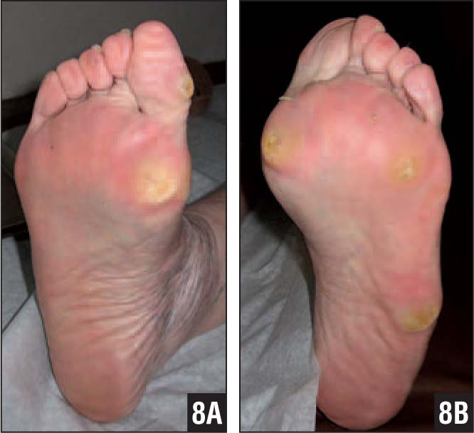 Bilateral Calluses Before Tendon Lengthening (gastrocnemius-Soleus Recession Bilaterally and on Right Peroneus Longus, Flexor Hallucis Longus, and Third Toe Flexors), Which Typically Resolve and Do not Progress to Ulcer After Tendon Lengthening (A, B).