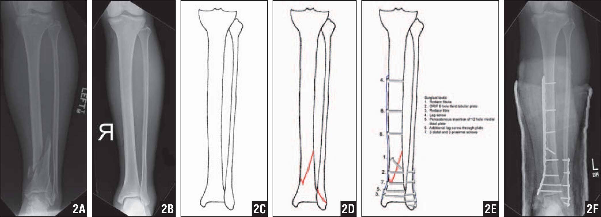 Radiograph of Left Tibia and Fibula Fracture (A). Reverse Image of Contralateral Uninjured Tibia (B). Tracing of the Tibia and Fibula Outline (C). Addition of Fracture Line. Note only the Main Fracture Lines Have Been Drawn for Clarity. Additional Fracture Lines Could Be Added Using Dashed Lines for the Posterior Extension of the Fracture Lines (D). Addition of the Planned Plates and Screws, Along with the Written Surgical Tactic (E). Postoperative Radiograph of Completed Internal Fixation (F).