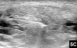 intratendinous steroid injection