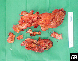 Figure 5B: Surgical removal of the upper and posterior heterotopic ossification