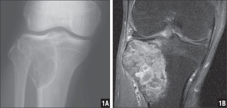 Preoperative radiograph showing a lytic lesion in the proximal tibia (A). Contrast-enhanced MRI showing gadolinium enhancement of the tumor lesion (B).
