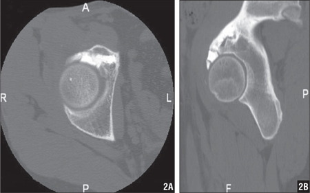 Preoperative axial (A) and sagittal (B) CT scans demonstrating bone cement at the articular surface of the acetabulum.