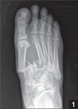 AP radiograph showing a divergent type Lisfranc injury as classified by Myerson et al.10