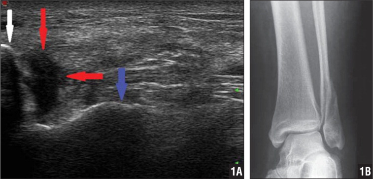 Ultrasonogram showing a disrupted deltoid ligament with the probe in the coronal plane. The white arrow indicates the medial malleolus, the blue arrow indicates the talus, and the red arrows indicate the disrupted deltoid ligament (A). Radiograph showing the same injury (B).