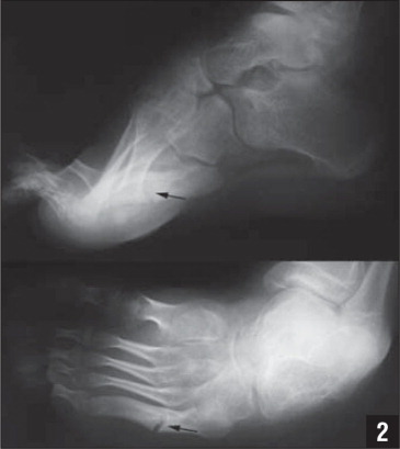Lateral (top) and AP (bottom) plain radiographs of the left foot showing severe cavovarus positioning as well as a healing fracture of the proximal fifth metatarsal (arrows).