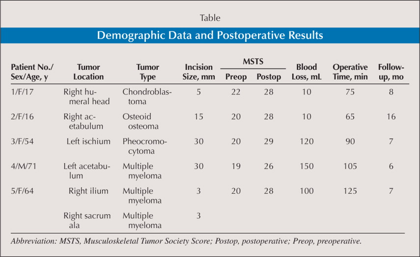 Demographic Data and Postoperative Results