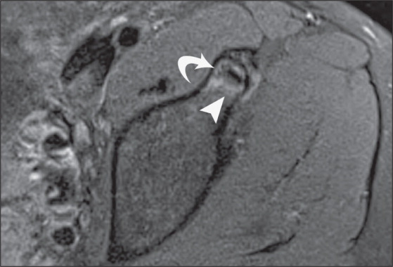 Proton Density-Weighted, Fat-Suppressed Coronal Image of the Left Hip Showing a Hypointense Calcific Focus Extending into the Anterior Inferior Iliac Spine (curved Arrow). High-Signal Bone Marrow Edema Is Seen in the Anterior Inferior Iliac Spine (arrowhead).