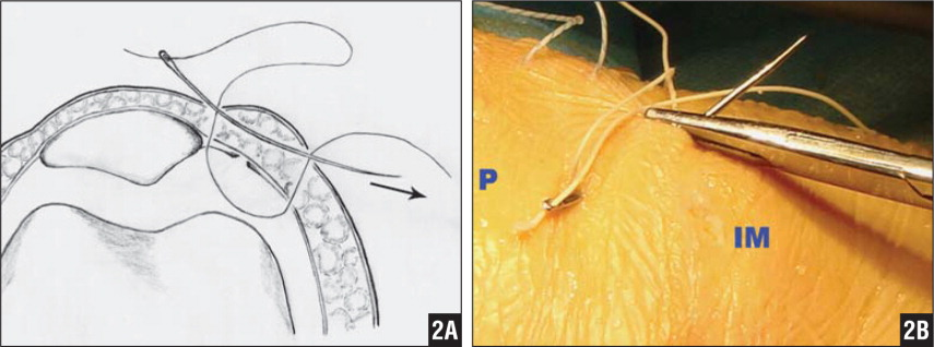 A giant needle passing through the inlet and outlet of the stitch subcutaneously (A, arrow) led the suture end at medial patellar edge out from the far medial eyelet (A, B). Abbreviations: IM, inferomedial portal; P, patella.