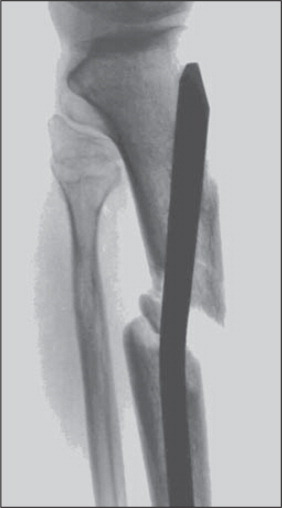 The distal location of the Herzog bend of this older unreamed Synthes tibial nail caused posterior and distal displacement of the shaft segment during nail insertion.