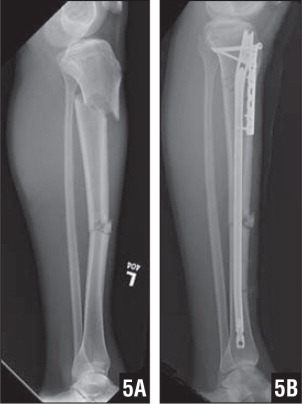 Lateral radiograph of a segmental tibial fracture (A). A 7-hole compression plate has been placed anterior to the path of the intramedullary nailing for reduction of the proximal portion of this segmental tibial fracture (B).