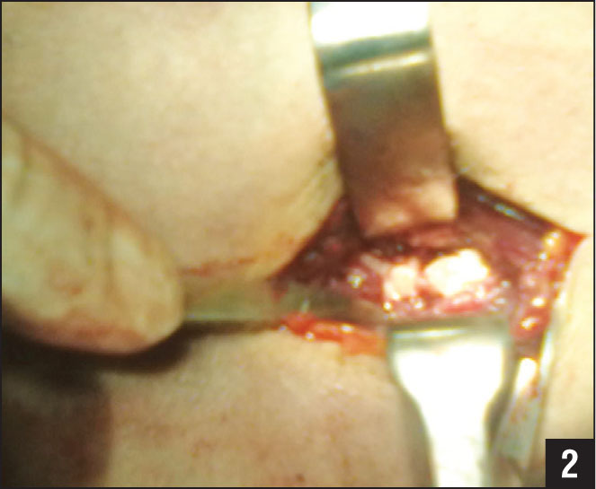 Patient 1. Intraoperative photograph of the medial incision.