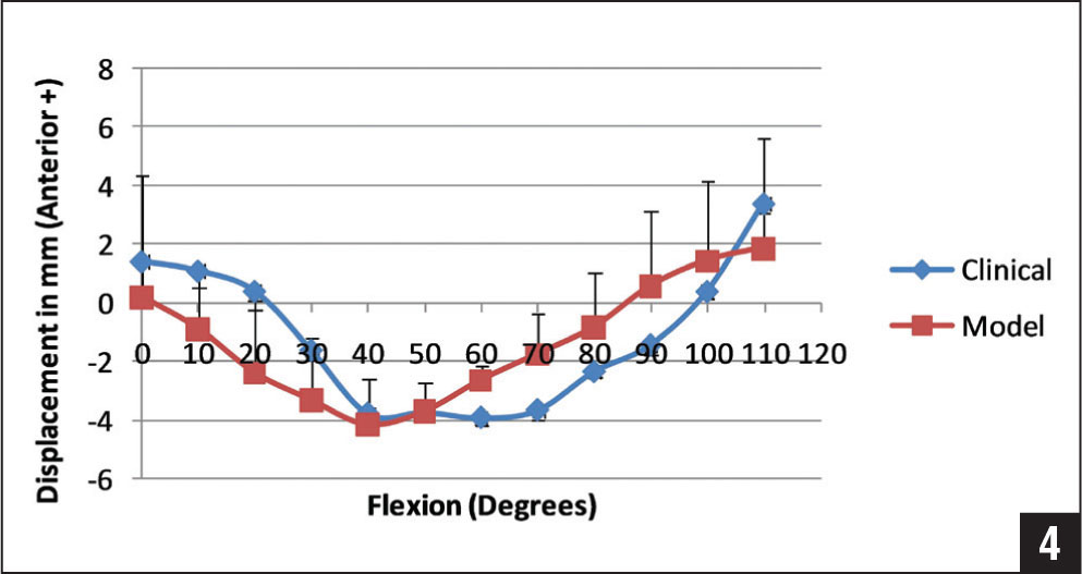 Average translation of the femur with respect to the tibia for the clinical passive knee motion and the computer model lunge maneuver from 0 to 100° of flexion show good comparison of the overall patterns for the clinical and model results with posterior translation of the femur up until mid flexion and then an anterior translation pattern up to 100° of flexion.