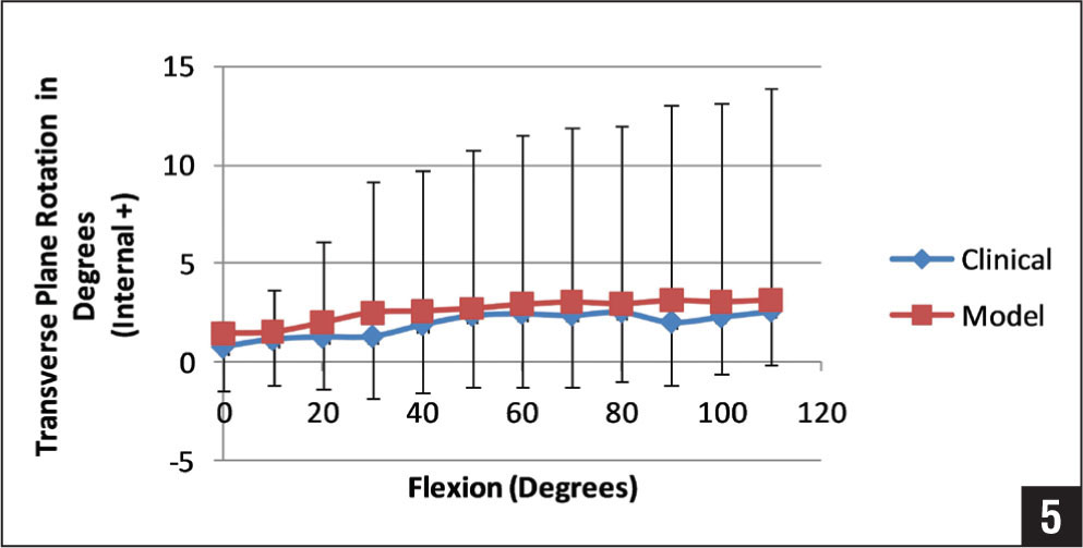 Average transverse plane rotation of the femoral component with respect to the tibia component from 0° to 100° of flexion for the passive clinical and computer lunge maneuver. Similarly, both resulted in small amounts of internal rotation of the femoral component as the knee was flexed.