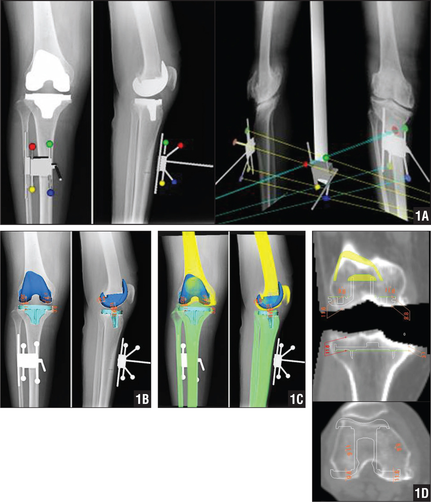 A 3-dimensional marker was attached on the surface of the patient's lower leg, and marker sihouettes were used on the images to 3-dimensionally couple the 2 radiographic images (A). Implanted components were matched to the images using a computer-aided design program (B). Computed tomography (thickness, 2.5 mm) images were matched with the coupled radiographic images (C). The thickness of each part of the bone cut was measured on computed tomography (D).