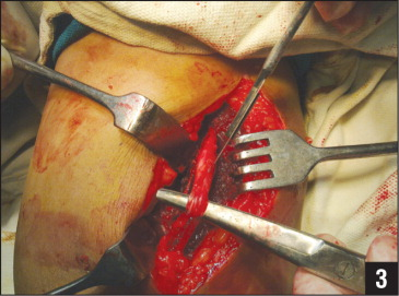 Intraoperative photograph showing the radial nerve being incised longitudinally to excise the calcific mass.