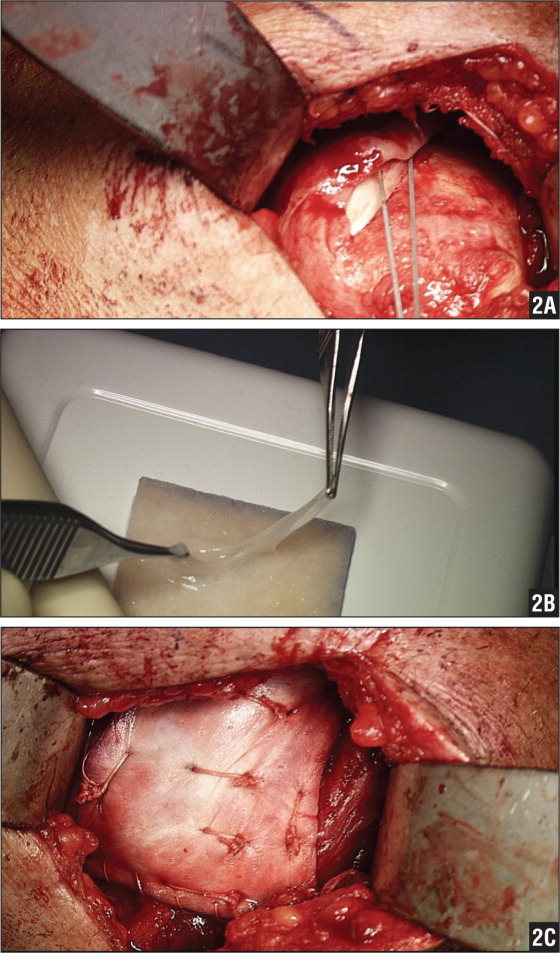 Intraoperative photographs showing the evaluation of the recurrent rotator cuff tear (A), application of the chorionic membrane with mesenchymal stem cells to the dermal allograft (B), and final application of the biologic construct to the rotator cuff repair (C).