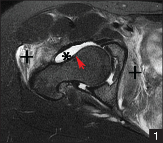 Initial preoperative axial magnetic resonance image without contrast showing a large effusion (asterisk), soft tissue edema (+), and anterior cam morphology (red arrow).