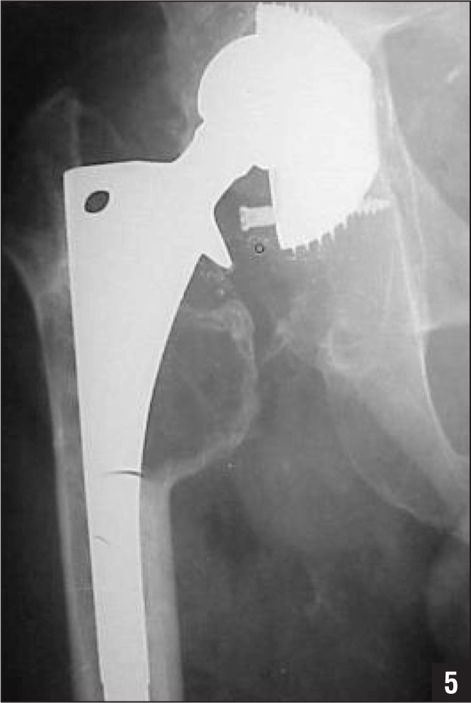 Preoperative anteroposterior radiograph of the right hip demonstrating massive osteolysis, loosening and migration of the acetabular cup, and severe polyethyelene wear.