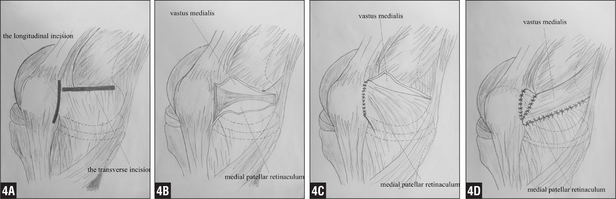 Medial and Lateral Retinaculum Plasty for Congenital Patellar ...