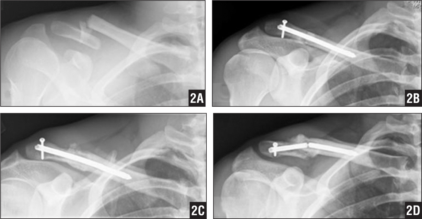 Anteroposterior radiographs of the right clavicle showing injury (A), immediate postoperative reduction with intact implant (B), maintained reduction at 6 weeks with copious callous formation (C), and displacement and hardware failure after repeat injury with hypertrophic callous at 6 months with failed implant (D).