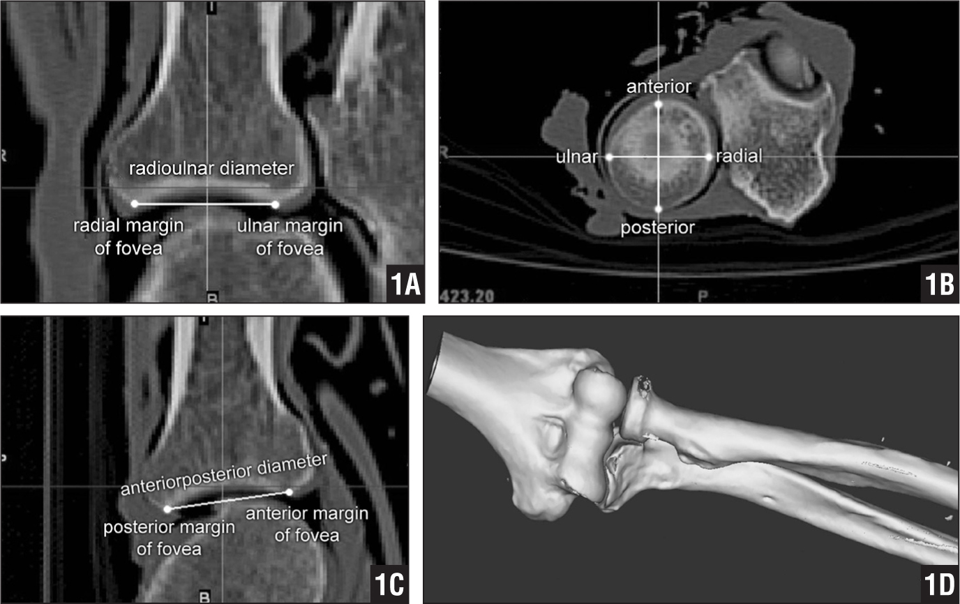 Screenshots of Mimics 3-dimensional software (Materialise, Leuven, Belgium) showing measurements of the most proximal projections of the fovea. Coronal (A), transverse (B), and sagittal (C) views of the radial head of the left elbow (A). Anteroposterior 3-dimensional reconstruction of the elbow (D).