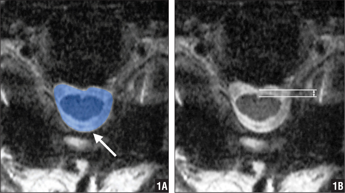 Transverse T2-weighed magnetic resonance image showing the extent of decompression assessed by measuring the cross-sectional area of the dural sac (arrow) (A). The distance of spinal cord drift was assessed from the posterior margin of the posterior longitudinal ligament to the anterior margin of the spinal cord (B).