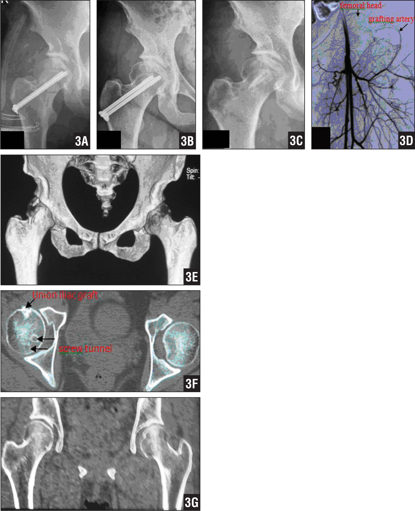 Postoperative Radiographs Showing A Garden Type III Fracture. The Fracture  Was Fixed With 2 Cannulated