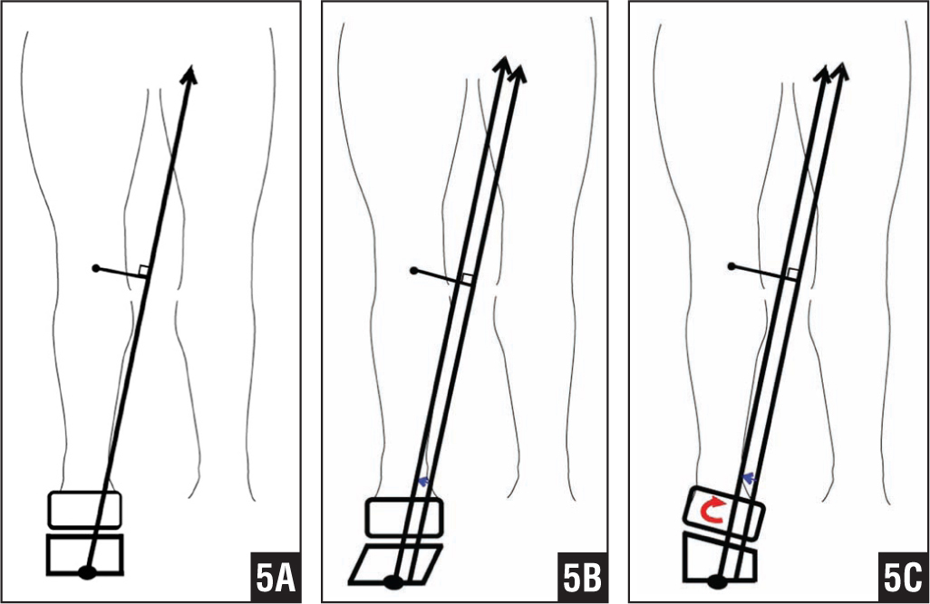 Schematic drawings of the mechanisms of action on the knee and ankle joints of a conventional shoe (A), a lateral-offset sole shoe (B), and a lateral-wedge insole shoe (C). The lever arm of the knee adduction moment is shortened when wearing lateral-offset sole shoes and lateral-wedge insole shoes compared with wearing conventional shoes. When wearing lateral-wedge insole shoes, additional foot eversion is observed (moment=lever arm×ground reaction force) (large black dot, center of pressure; small black dot, knee joint center; black arrow, ground reaction force; blue arrow, lateral shifting of center of pressure; red arrow, additional foot eversion).