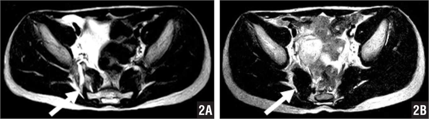 Pretreatment T2-weighted magnetic resonance image of the posterior aspects of the pelvis showing high-intensity changes of the piriformis muscle (arrow) (A). Posttreatment magnetic resonance image showing normalized intensity of the right piriformis muscle (arrow) (B).
