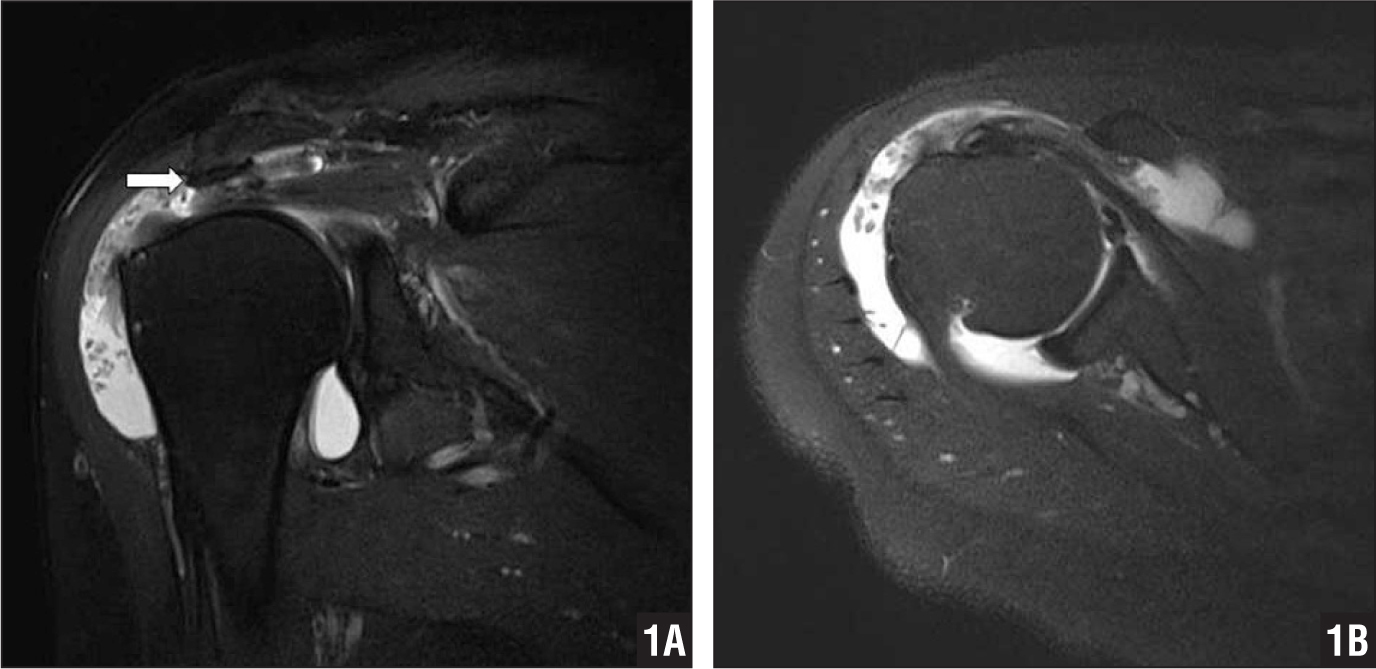 Coronal (A) and transverse (B) fat-suppressed T2-weighted magnetic resonance images of the right shoulder. A large-sized acromial spur (arrow) was noted.