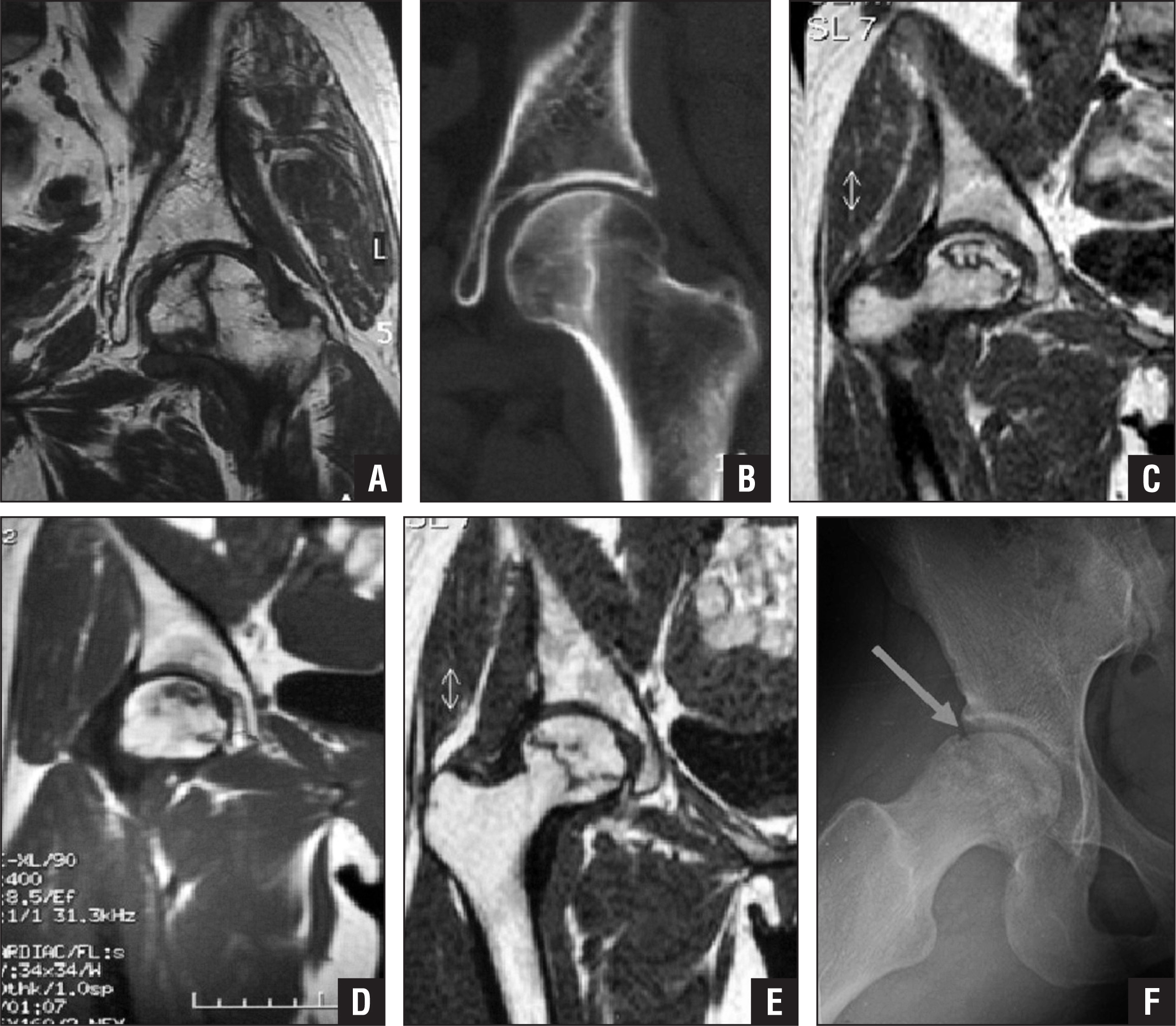 Magnetic resonance image of type I osteonecrosis of the femoral head (ONFH) showing a preserved lateral pillar (A). Computed tomography scan showing no collapse of the femoral head 7 years later (B). Magnetic resonance image of type II ONFH showing partial preservation of the lateral cortical bone (C). Computed tomography scan showing no collapse of the femoral head 4 years later (D). Magnetic resonance image of type III ONFH showing the necrotic line passing through the cortical bone and bone marrow (E). Radiograph showing collapse of the femoral head 2 years later (F).