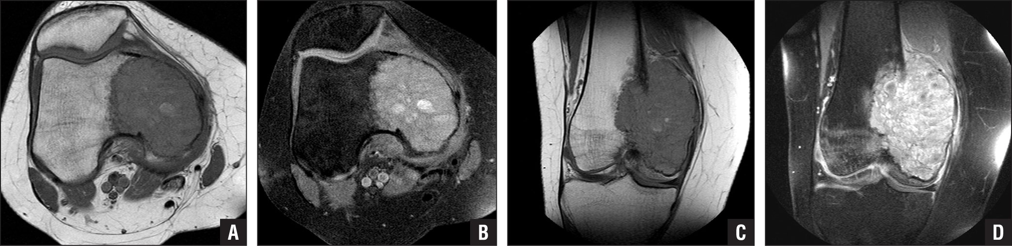 Axial T1 (A), axial T2 (B), coronal T1 (C), and coronal T2 (D) magnetic resonance images of medial femoral condylar destruction from a giant cell tumor. Giant cell tumor demonstrates a low signal with respect to muscle on T1 imaging and a heterogeneously higher signal with respect to muscle on T2 imaging. More than 60% of giant cell tumor lesions contain hemosiderin deposits that create low signal intensity on T2 spin echo sequences.