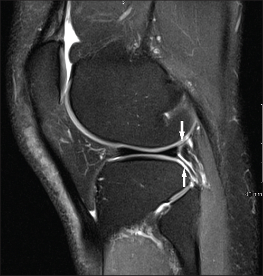 Sagittal T2 magnetic resonance image showing intact superior and inferior popliteomeniscal fascicles (arrows).