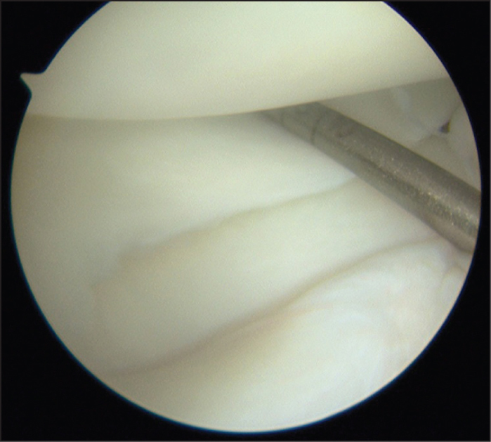 Intraoperative arthroscopic lateral compartment image showing a hypermobile lateral meniscus (Patient 1).