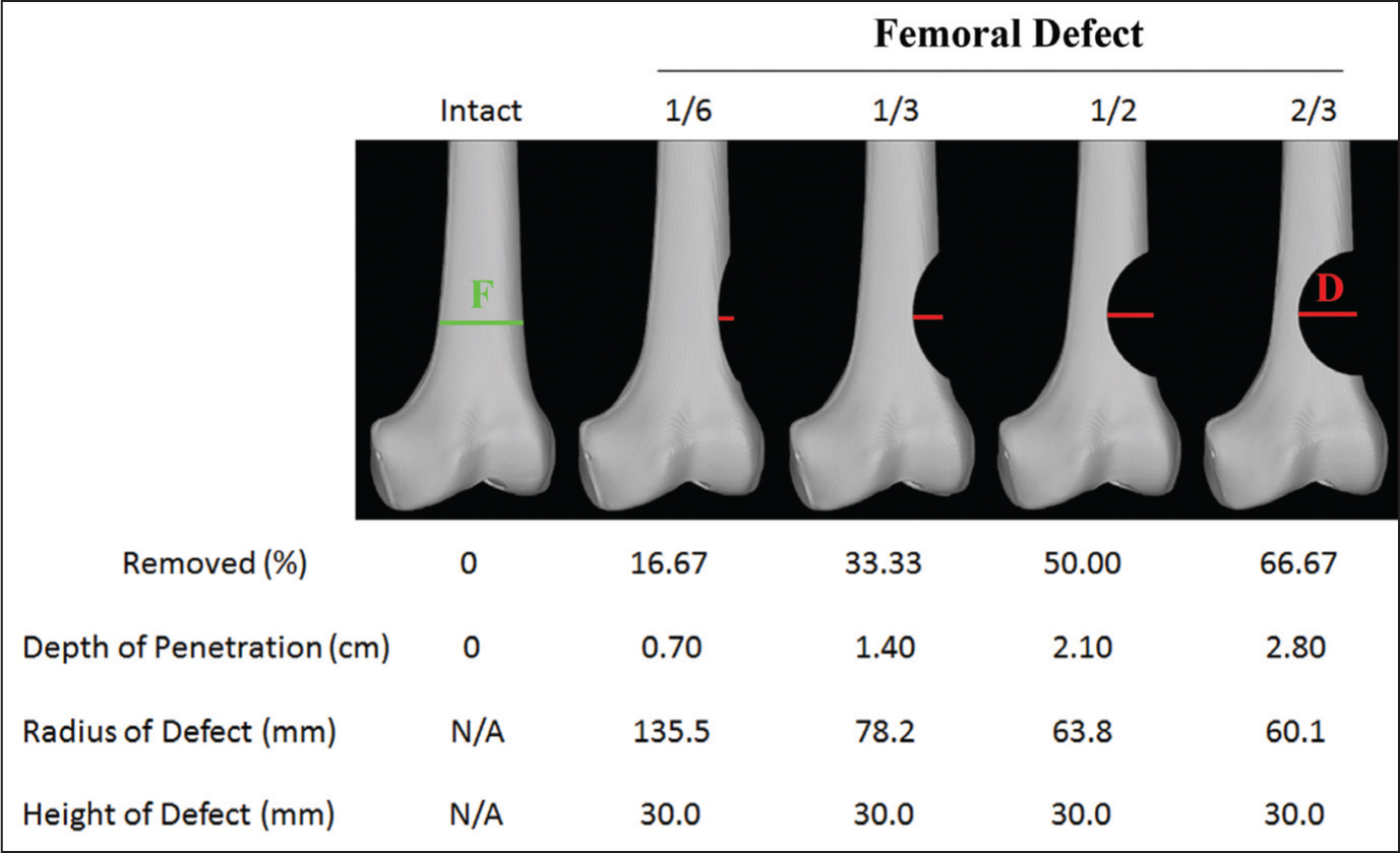 Computer tomographic reconstruction of each femoral defect as well as the depth, radius, and height of each femoral defect. Percent cortical defect is calculated based on the ratio of the femoral width at the apex of the defect (D) to the true width of the femur at that same location (F) multiplied by 100. Abbreviation: N/A, not applicable.