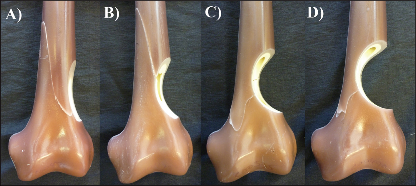 Representative model for each fracture pattern after failure of each defect: 17% cortical defect (A), 33% cortical defect (B), 50% cortical defect (C), and 67% cortical defect (D).