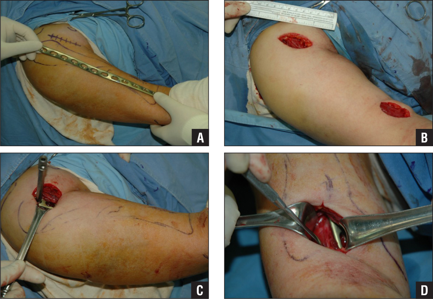 The position of a precontoured helical plate is checked (A). Two separate small incisions in the minimally invasive plate osteosynthesis technique (B). A proximal incision with a deltopectoral approach and a plate with a drill sleeve (C). A distal incision with a brachialis-splitting approach and a plate on the anterior aspect of the humerus (D).
