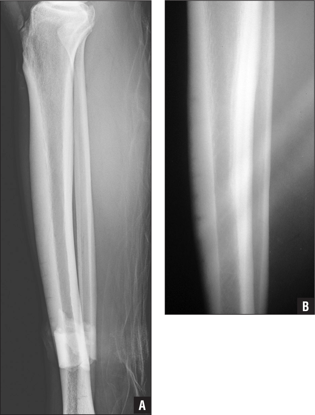 Multiple Anterior Tibial Stress Fractures Complicated By