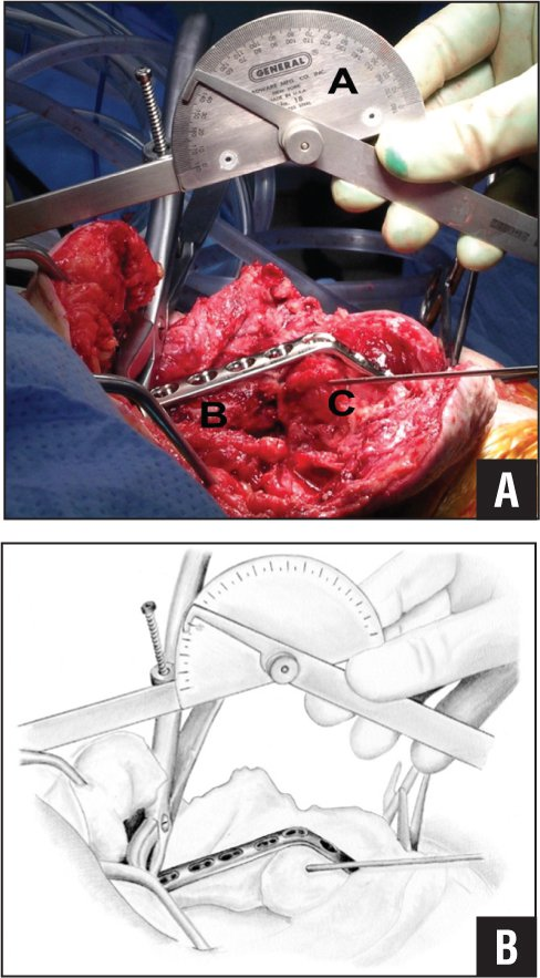 Intraoperative photograph (A) and illustration (B) of a goniometer showing the angle of fusion after bending the plate on a press. (Reprinted with permission from Wiesel SW, ed. Operative Techniques in Orthopaedic Surgery. Wolters Kluwer Health, 2011.)