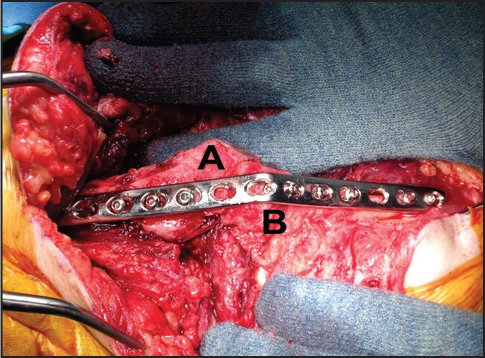 Intraoperative photograph of a completed elbow arthrodesis using a step-cut osteotomy and 3.5-mm locking plate and lag screw technique. Abbreviations: A, distal humerus; B, proximal ulna. (Reprinted with permission from Wiesel SW, ed. Operative Techniques in Orthopaedic Surgery. Wolters Kluwer Health, 2011.)