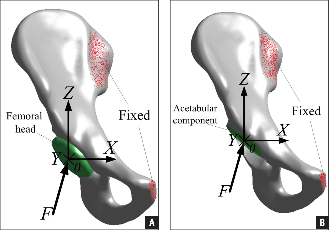 Hemi-pelvis 3-dimensional model. Normal hip model (A). Example of the acetabular reconstructed model using the high hip center technique (B). Abbreviations: F, hip joint contact force vector; O, the center of rotation; X, Y, and Z, directions in coordinates.