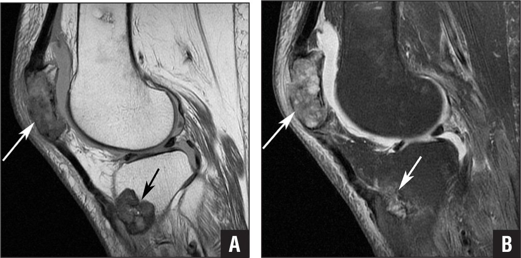 Magnetic resonance imaging of Brown tumors. Sagittal fast spin echo proton density (A) and fast spin echo T2-weighted fat suppressed (B) images of the left knee demonstrating marrow replacing lesions occupying the vast majority of the left patella and another one in the proximal tibial metaphysis (arrows). The pathologic patellar fracture is better appreciated on radiographs. Notice also the small joint effusion.