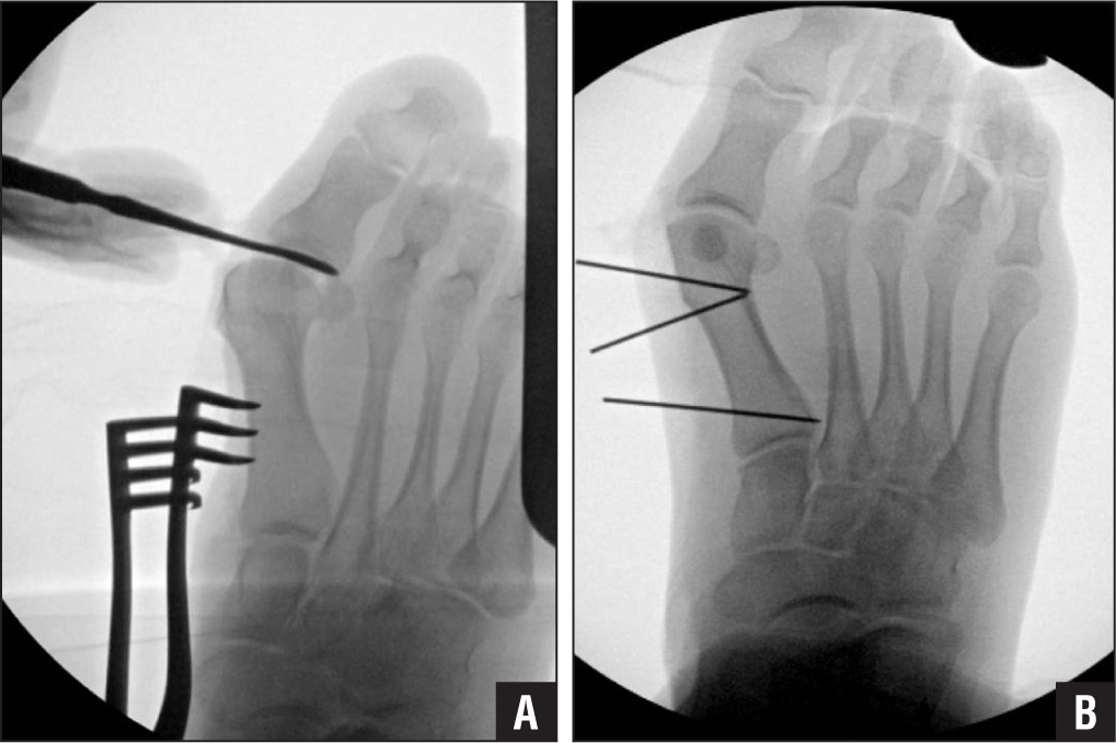 Dorsoplantar views by intraoperative fluoroscopy showing the technique for lateral capsular release (A) and Kirschner wire placement as guides for osteotomies (B).
