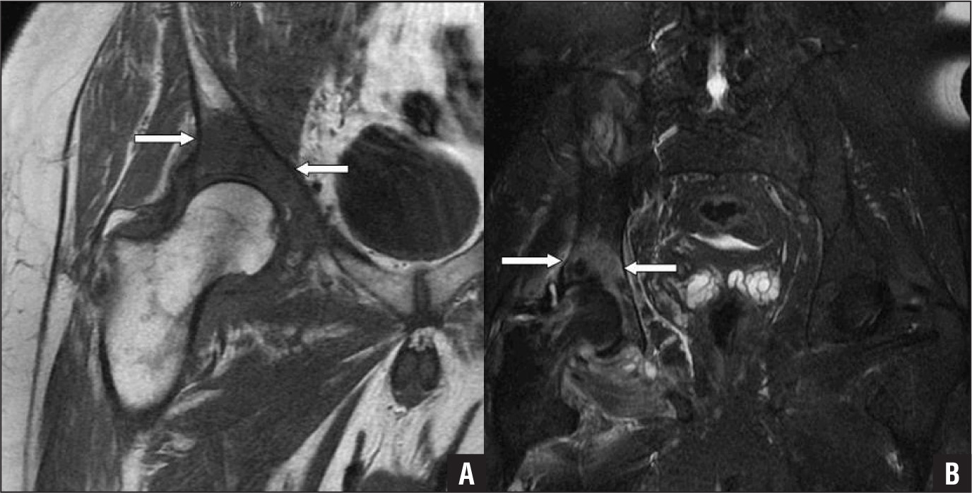 Preoperative T1-weighted (A) and T2-weighted (B) magnetic resonance imaging scans showing distinct osteomyelitis of the acetabulum (arrows).