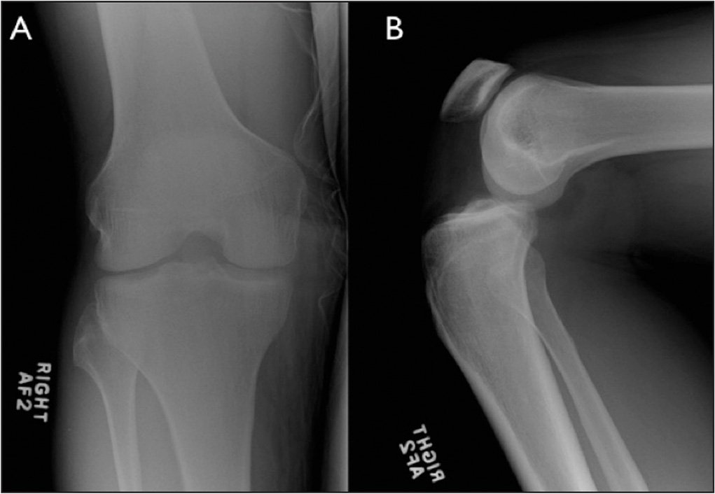 Anteroposterior (A) and lateral (B) radiographs obtained for Patient 1 in the Emergency Department. An anterior knee dislocation is seen.