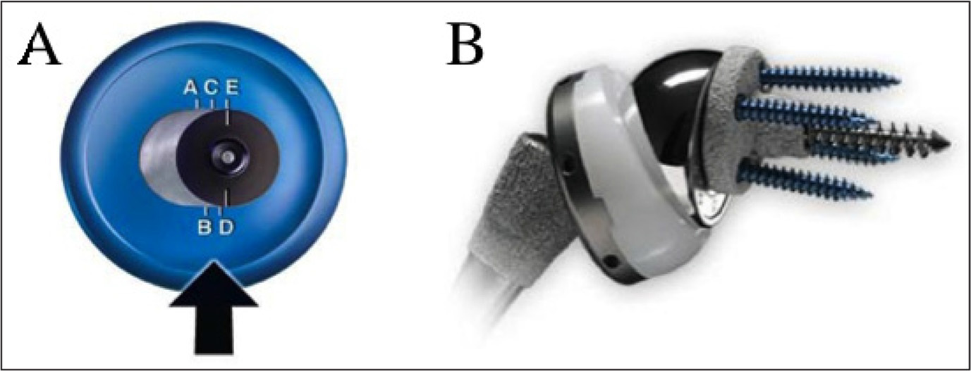 Eccentric glenosphere trial component of the Comprehensive Reverse Shoulder System (Biomet Inc, Warsaw, Indiana) (A). Settings A to E represent the different increments in millimeters. The eccentric glenoid is seen on the final implant (B). The amount of inferior offset is determined with rotation of the glenosphere onto the metaglene.