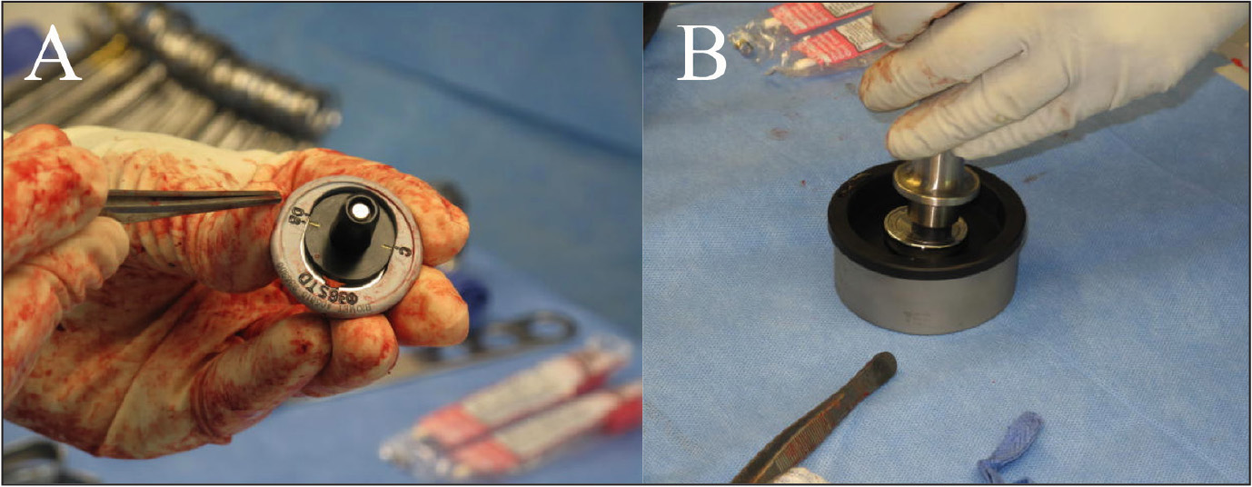 The trial glenosphere component size is determined intraoperatively. The different settings (A–E) are seen on the side of the trial component (A). The final glenosphere component is assembled in the eccentric offset position according to the size determined with the trial components (B).