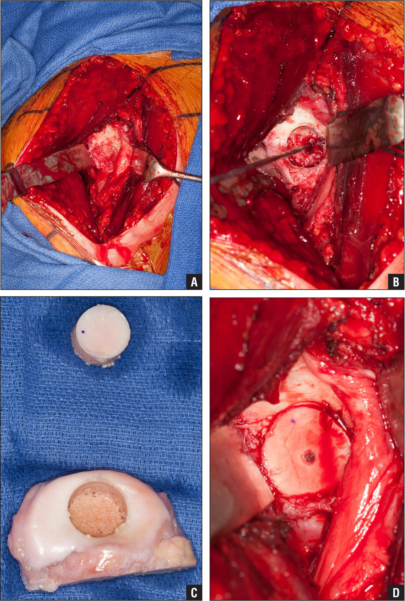 Intraoperative photographs showing the large osteochondritis dissecans lesion of the glenoid before (A) and after (B) preparation of the recipient site. The osteochondral allograft was procured from the medial tibial plateau (C) and subsequently transplanted into the glenoid recipient site in a press-fit fashion with biocompression screw backup fixation (D).