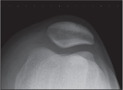 Sunrise radiograph of the patella.